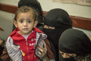 Dampak Pemberontakan Syiah, 80% Rakyat Yaman Butuh Bantuan Kemanusiaan