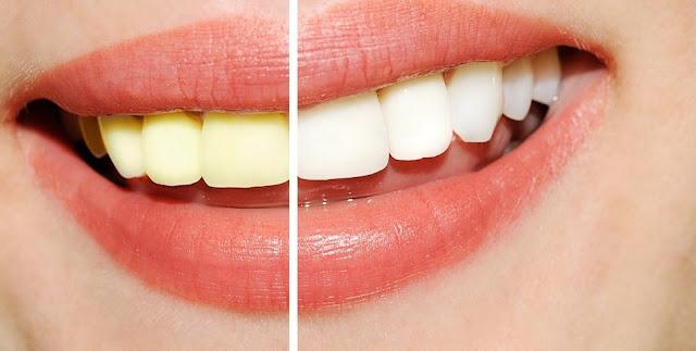 Cara Mudah dan Alami Membuat Gigi Putih dan Sehat