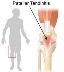 Cara Mengobati Radang Otot Tendon