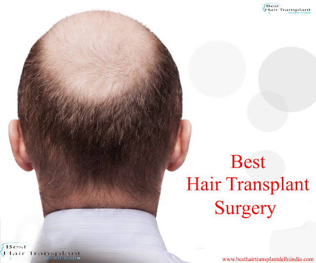 best hair transplant surgeon in Delhi, hair surgery in delhi, hair loss surgery in delhi, hair transplant surgery in delhi, best hair restoration surgery in india, #scalpreduction, #prptreatment, #besthairtransplant, #hairsurgeon, #FUE, #FUT, #moustaches,  #beards , #eyebrows,  #eyelash, #mesotherapy, #hairreplacmentcost