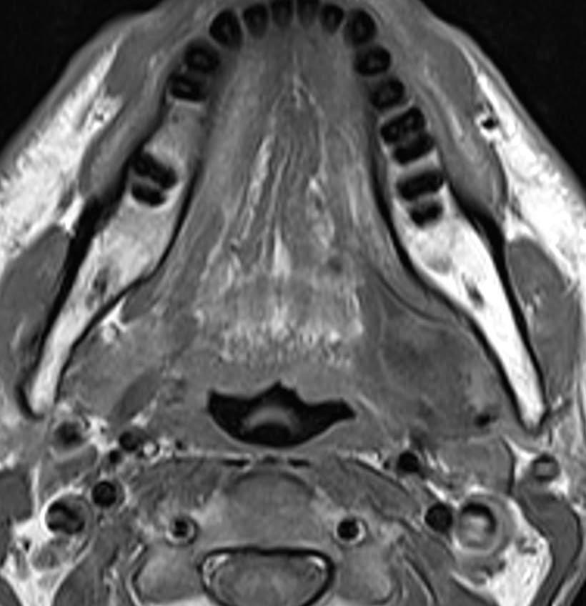 Lesión quística en espacio sublingual. MRI.