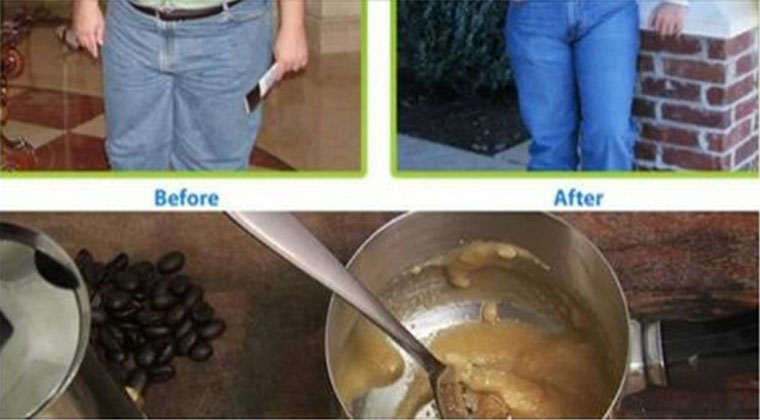 Se é possível perder o peso com a ajuda uma raiz de gengibre