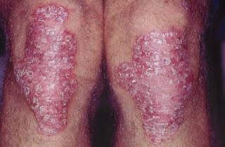 cara mengobati kulit gatal bersisik yang sudah menahun