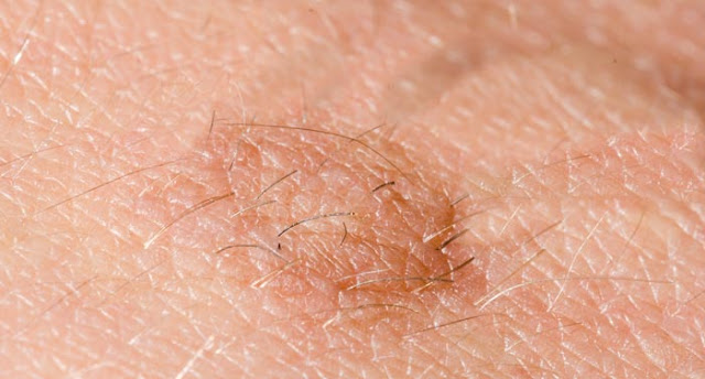 Get rid of skin tags using apple cider vinegar