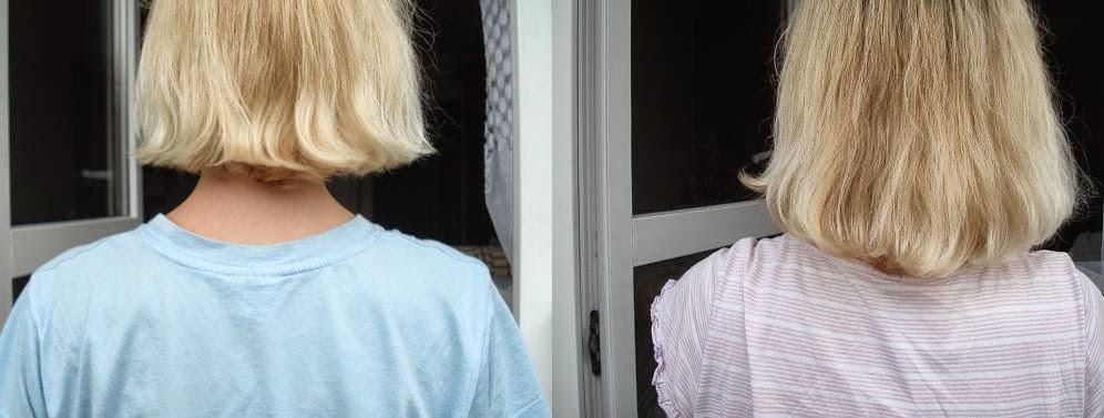 kuracja drożdżowa na wypadanie włosów