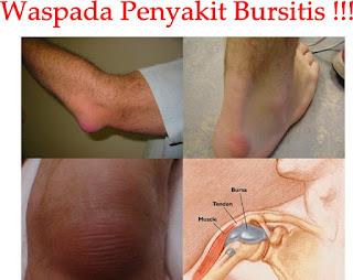 Nama Obat Tradisional Penyakit Bursitis