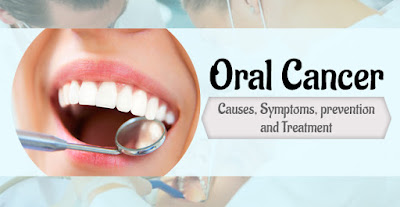 Non Healing Ulcer, It Could Be Oral Cancer: Schedule an