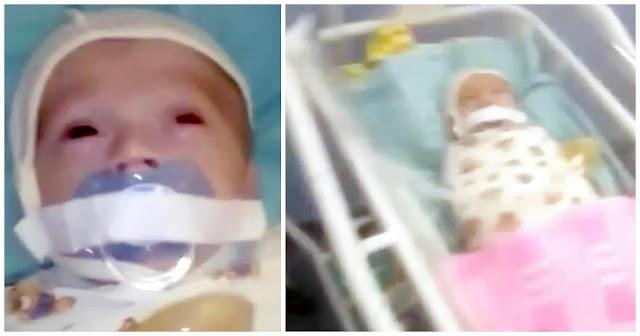 Υπάλληλοι νοσοκομείου κόλλησαν την πιπίλα βρέφους με κολλητική ταινία στο στόμα του για να σταματήσει να κλαίει