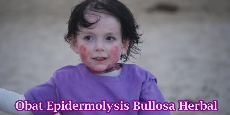 Hasil gambar untuk epidermolysis bullosa ringan