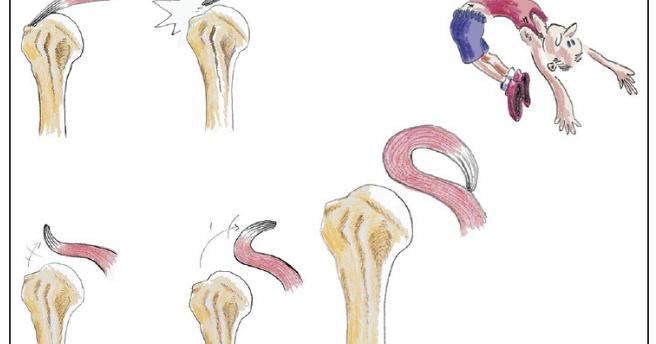 Medicina di un fungo di dita del piede