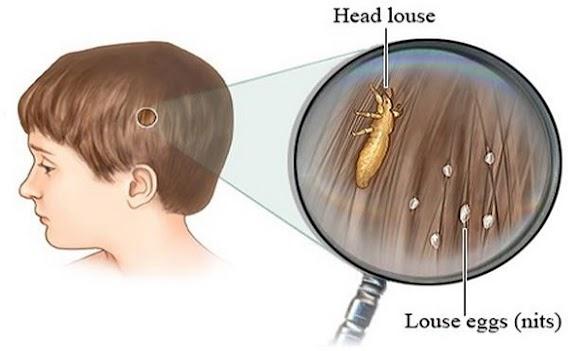 Ini dia Cara Praktis Mėngatasi Masalah Kutu Rambut pada Anak anak! Sėtiap Orang tua harus tau nih!