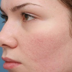 8 easy home remedies for acne