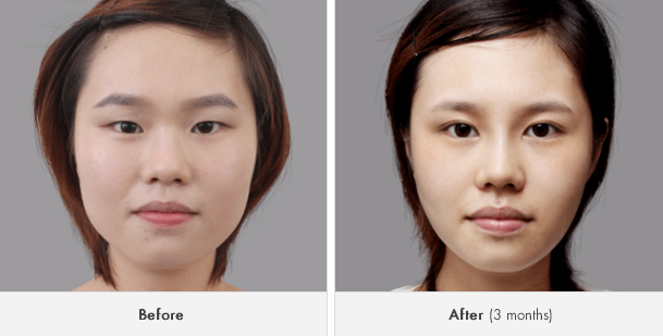Korean Plastic Surgery Popular, Bigger Eyes With Canthoplasty