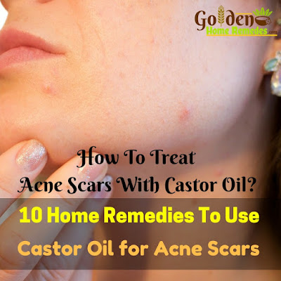 Castor Oil For Acne Scars, Castor Oil Acne Scars, Is Castor Oil Good For Acne Scars, How To Use Castor Oil For Acne Scars, Castor Oil And Acne Scars,