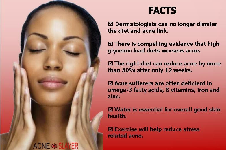 What Most Acne Sufferers Have In Common Is The Western Diet The Western Diet Is Loaded With Processed Foods Processed Foods Are Known To Cause A Sharp