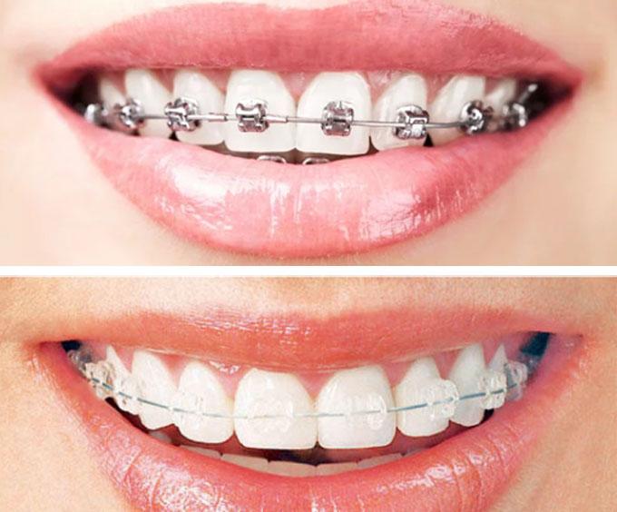 ارخص سعر تقويم الاسنان