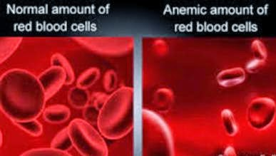 Anaemic Red Blood Cells