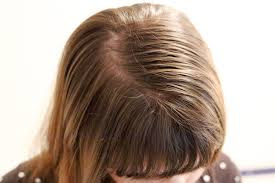 tips for oily hair in urdu