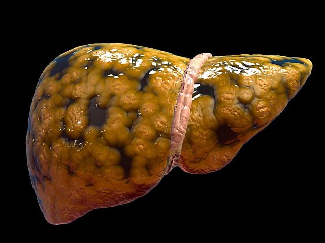 alimentul care iti distruge ficatul