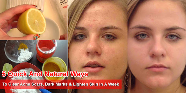 5 Quick And Natural Ways To Clear Acne Scars, Dark Marks & Lighten Skin In A Week
