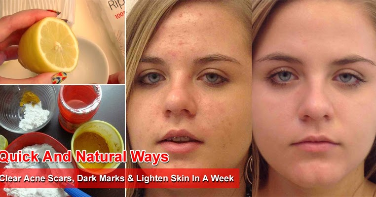 5 Quick And Natural Ways To Clear Acne Scars Dark Marks Lighten Skin In A Week Style Hunt World