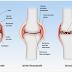 Artrosi - Artrite Reumatoide. Cura naturale di Daniele Guarrera