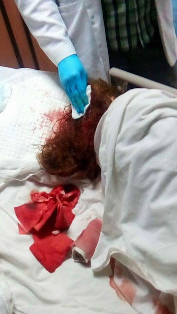 Netizen Cries for Justice After Her Friend Was Battered by Ex Boyfriend! Must Read