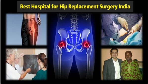 Best Hospital for Hip Replacement Surgery India