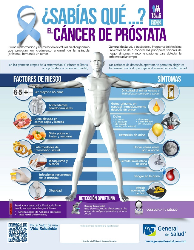 signos de cancer de prostata