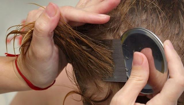 Tips Cara Menghilangkan Kutu Rambut