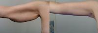 ejemplo fotos antes y despues de una braquioplastia en brazos Guadalajara Mexico nayarit