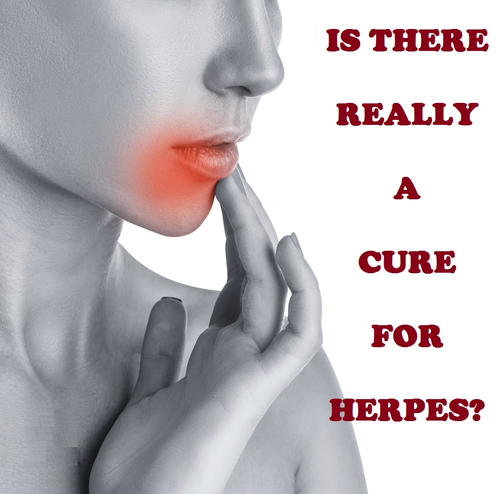 IS THERE REALLY A CURE FOR HERPES?