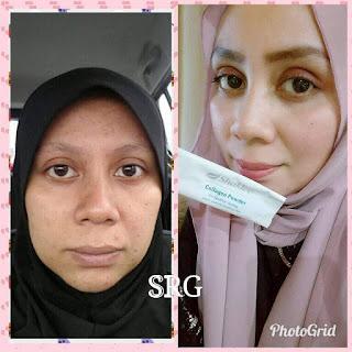 Petua Kulit Cantik, rahsia kulit cantik, Set Kecantikan Shaklee, Collagen Powder Shaklee, Kolagen, Cara minum collagen Shaklee,