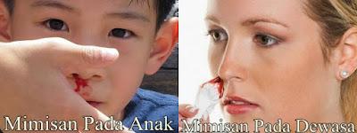 Pengobatan Hidung Mimisan Menahun Secara Herbal