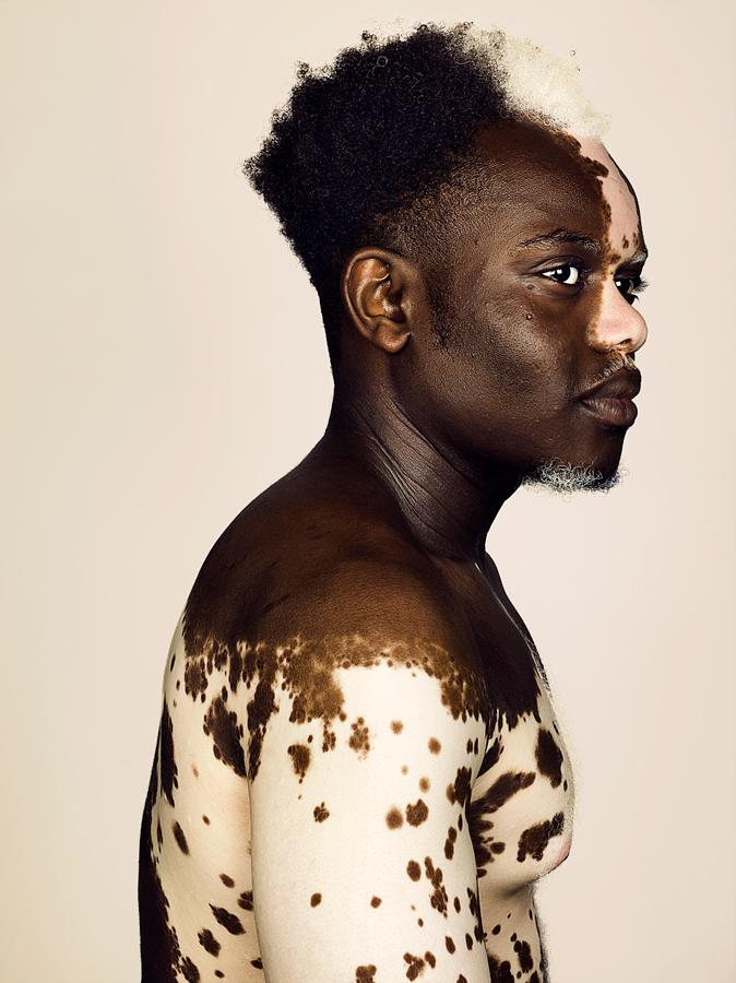 Personas con vitiligo-modelo Bashir Aziz