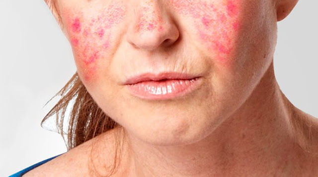 What causes lupus and symptoms ? Here define lupus you should know