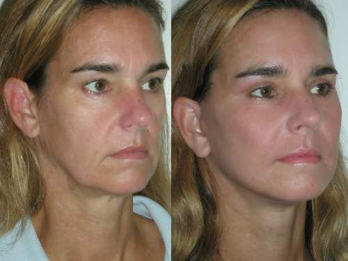 A Natural Trick That Reduces Deep Wrinkles