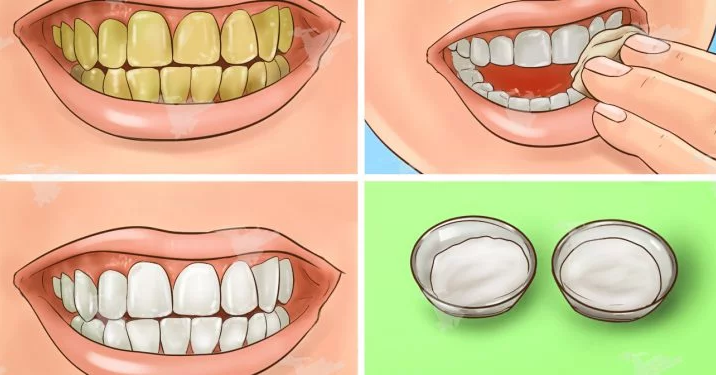 Guaranteed Effect! Bleach Your Yellow Teeth In Minutes