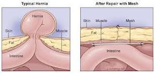 obat hernia tanpa operasi ampuh