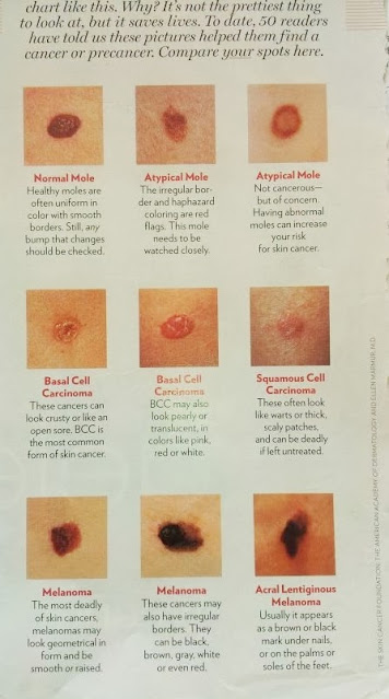 suspicious moles and spots