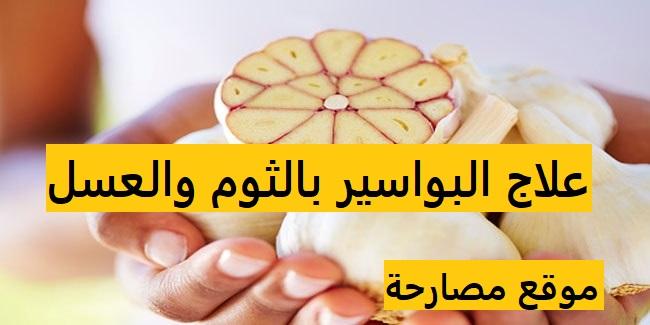 علاج البواسير بالثوم والعسل