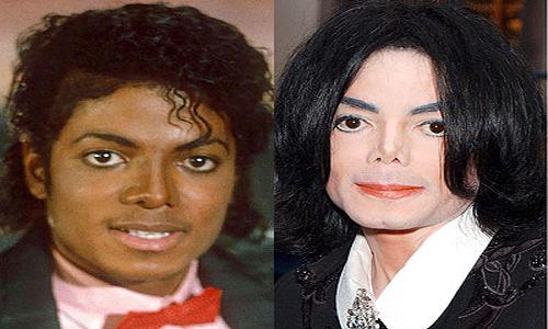 Top 5 Celebrity Plastic Surgery Disasters