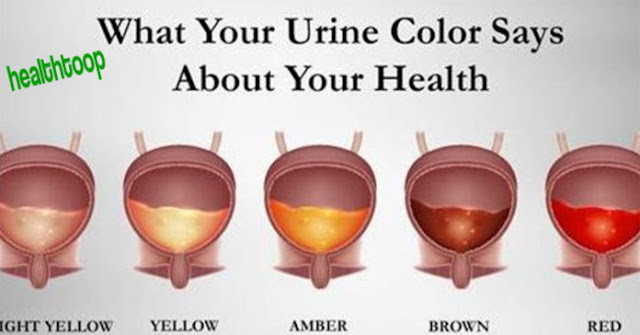 Pay Attention To The Color Of Your Pee! Check The List To Find Out What It Means!