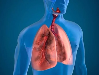 Treatment of Pneumonia that You Can Try