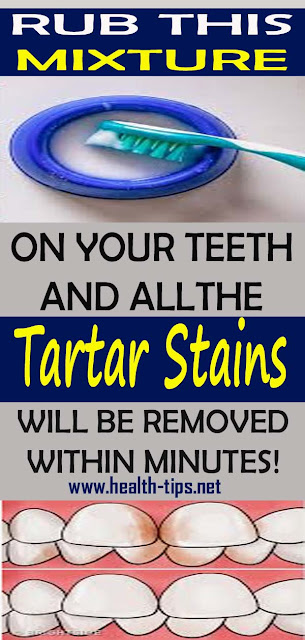 Naturally Whiten Teeth: 10 Ways To Remove Tartar Stains From Your Teeth
