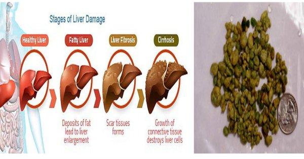 liver stones