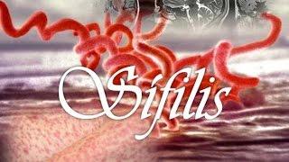 Pengobatan Sifilis secara Cepat Tepat dan Terpercaya
