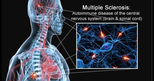 the life changing disease of multiple sclerosis Ms focus provides educational materials, events, and programming for every  audience,  sudden decrease in, blurred, or double vision numbness or tingling  in body or limbs changes in balance or coordination  is neuromyelitis optica ( nmo, or devic's disease) the same as ms  does ms shorten life expectancy.