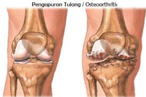 Penyebab Gejala Penyakit Pengapuran Tulang