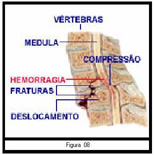 Por edema periférico lesão medular causado